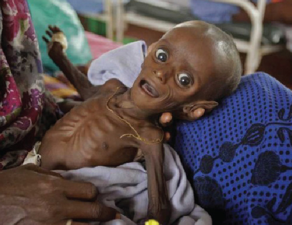 Somalia Children Starve to Death
