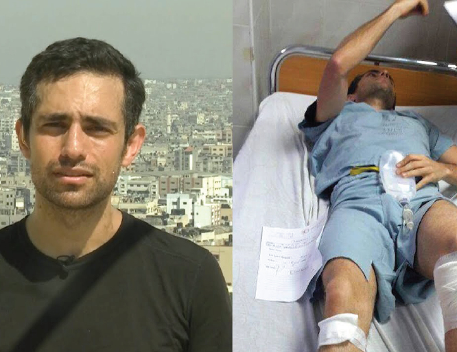 Canadian doctor shot by Israelis lobbies Trudeau to fund Gaza hospital project