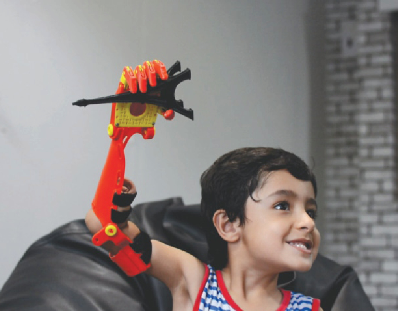 Muslim Engineers Develop Prosthetic Arm Controlled by Brain